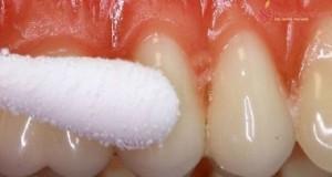 dentii