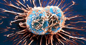 cellule-cancerogene-500x267