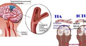 ictus-sintomi-730x430