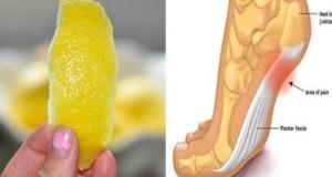 scorza-lemon-dolori-730x430